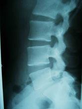 腰椎第二第三节增生
