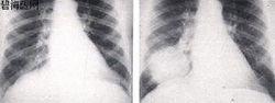 原发性肺动脉高压