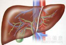 药物性肝炎
