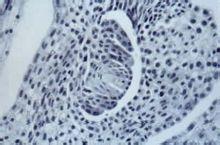 龙须草为无融合生殖的体细胞无孢子生殖